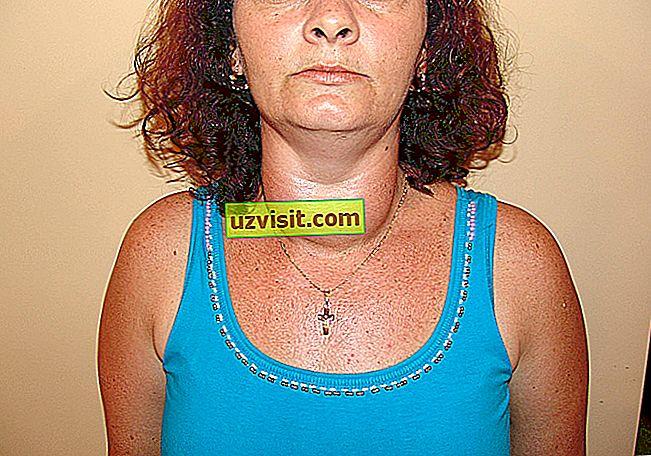 medicina: tiroidni