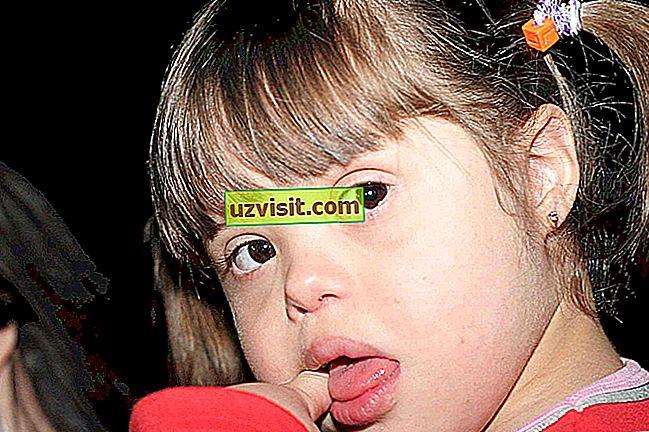 sindromul