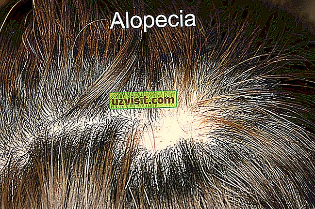 medicin: alopeci