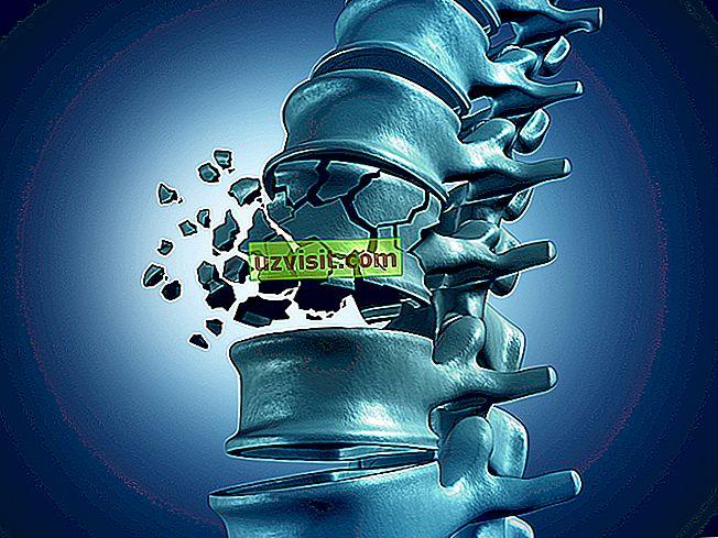 Osteoporoza - zdravila