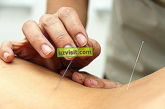 medicina - akupunktura